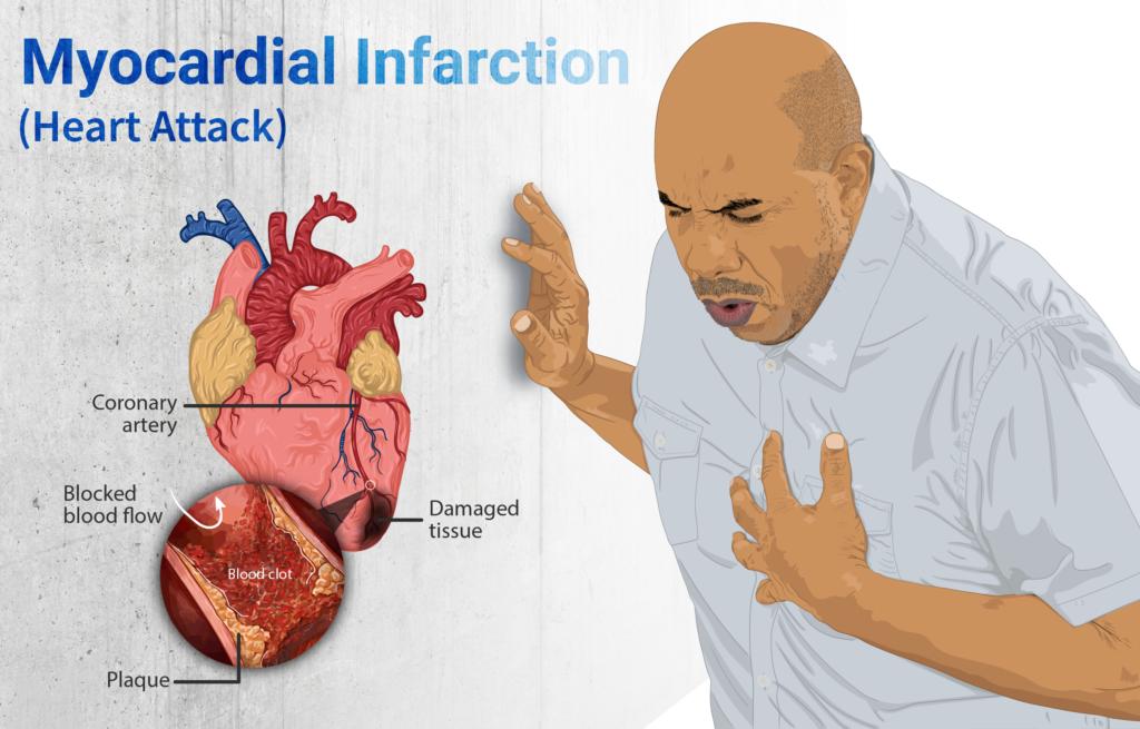 Enfarte do miocárdio